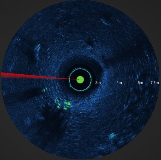 ISS360 Sonar Image Bike